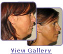 accent neck lift pictures
