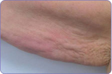 after laser skin tightening upper arm