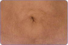 after laser skin tightening on belly