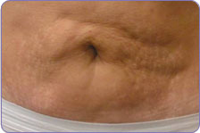 before laser skin tightening on belly