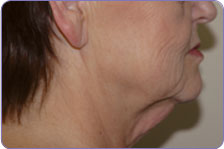 neck lift pictures before